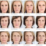 Radiesse, Sculptra before and after