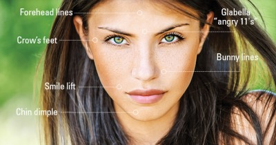 Experience the most popular skin rejuvenation solution in America: Botox & Dysport now available at the biostation
