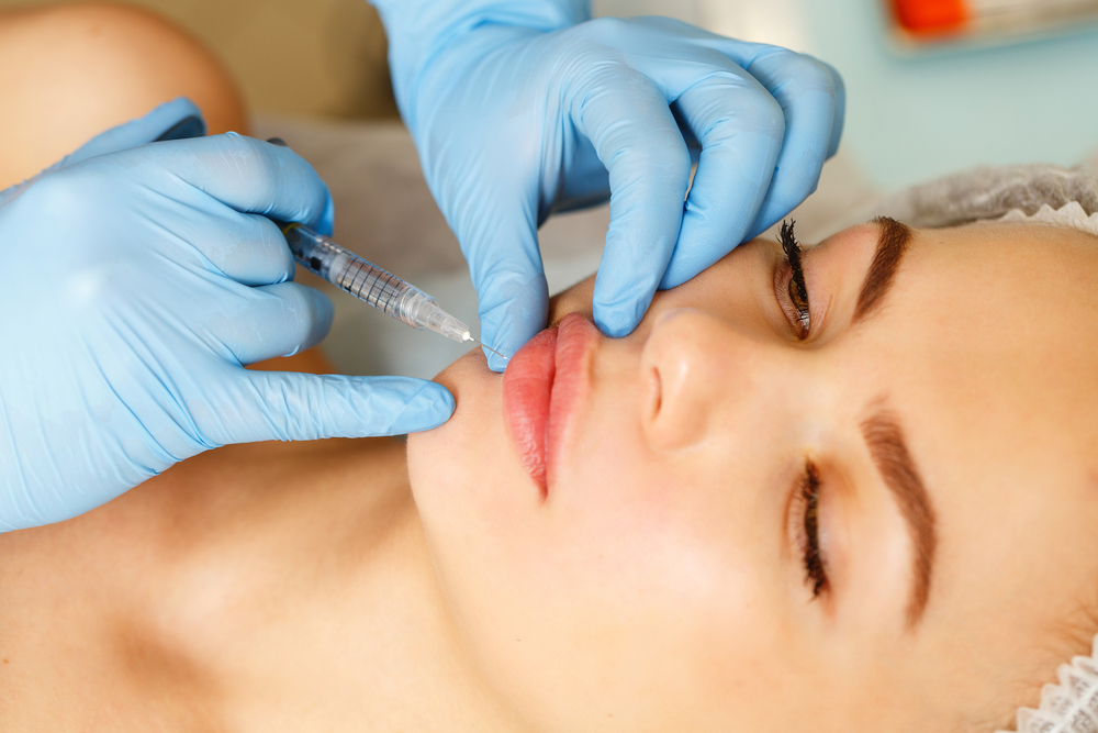 the biostation - Perfect Lips Injections