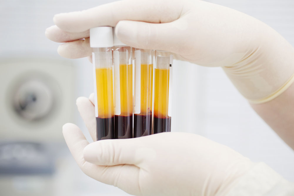 the biostation Del Ray Beach - Why Platelets and PRP Therapy are the New Fountain of Youth: Plasma