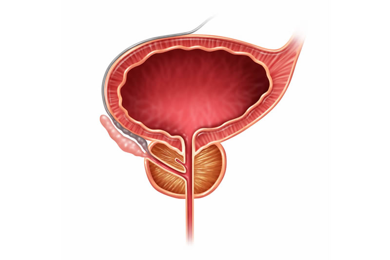 prostate-issues-erectile-dysfunction-img1