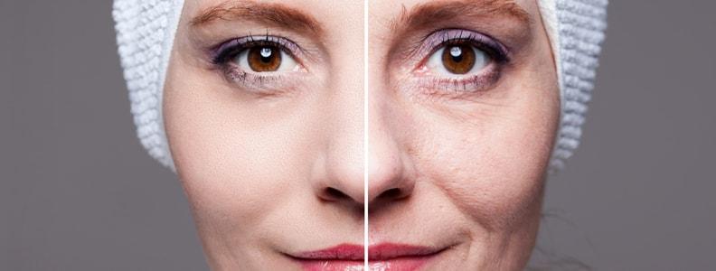 Facial Rejuvenation vs. Face Lift